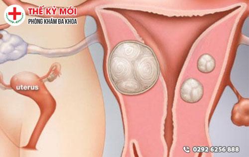 Bệnh u xơ cổ tử cung là gì