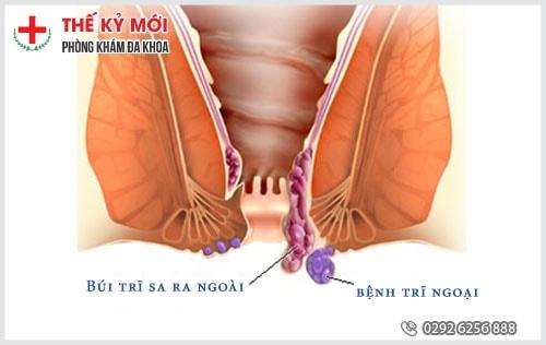Nhận biết bệnh trĩ ngoại độ 3 và 4